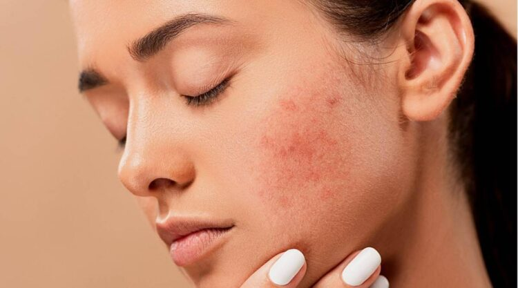 How to get Rid of facial scars & Acne